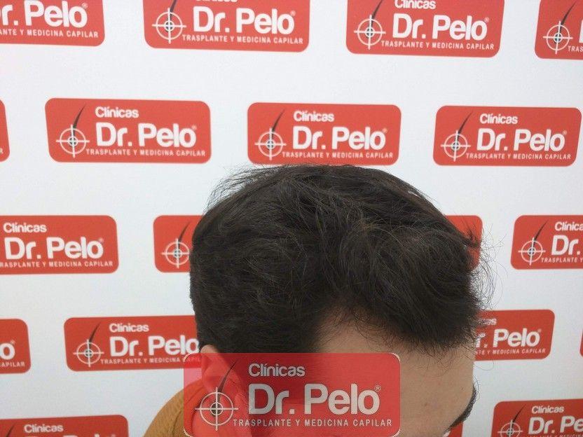 [Imagen: tratamiento-capilar-dr-pelo_17.jpg]