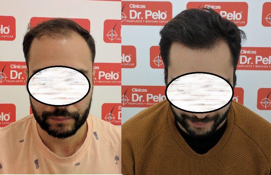 [Imagen: tratamiento-capilar-dr-pelo_20.jpg]