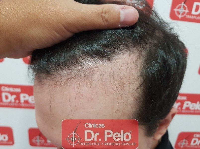 [Imagen: injerto-capilar-dr-pelo-sevilla-badajoz-...a_11-1.jpg]