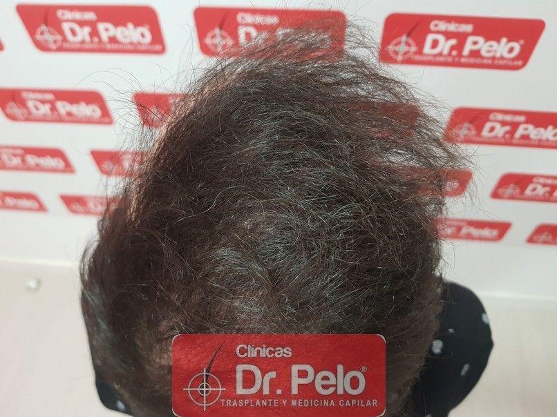 [Imagen: injerto-capilar-dr-pelo-sevilla-badajoz-...a_12-1.jpg]