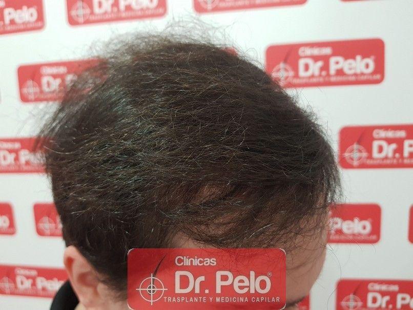 [Imagen: injerto-capilar-dr-pelo-sevilla-badajoz-...ida_13.jpg]