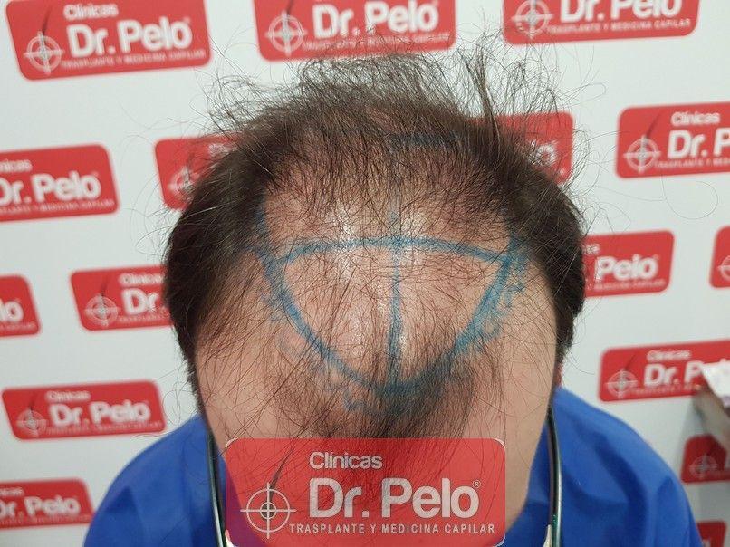 [Imagen: injerto-capilar-dr-pelo-sevilla-badajoz-...da_2-1.jpg]