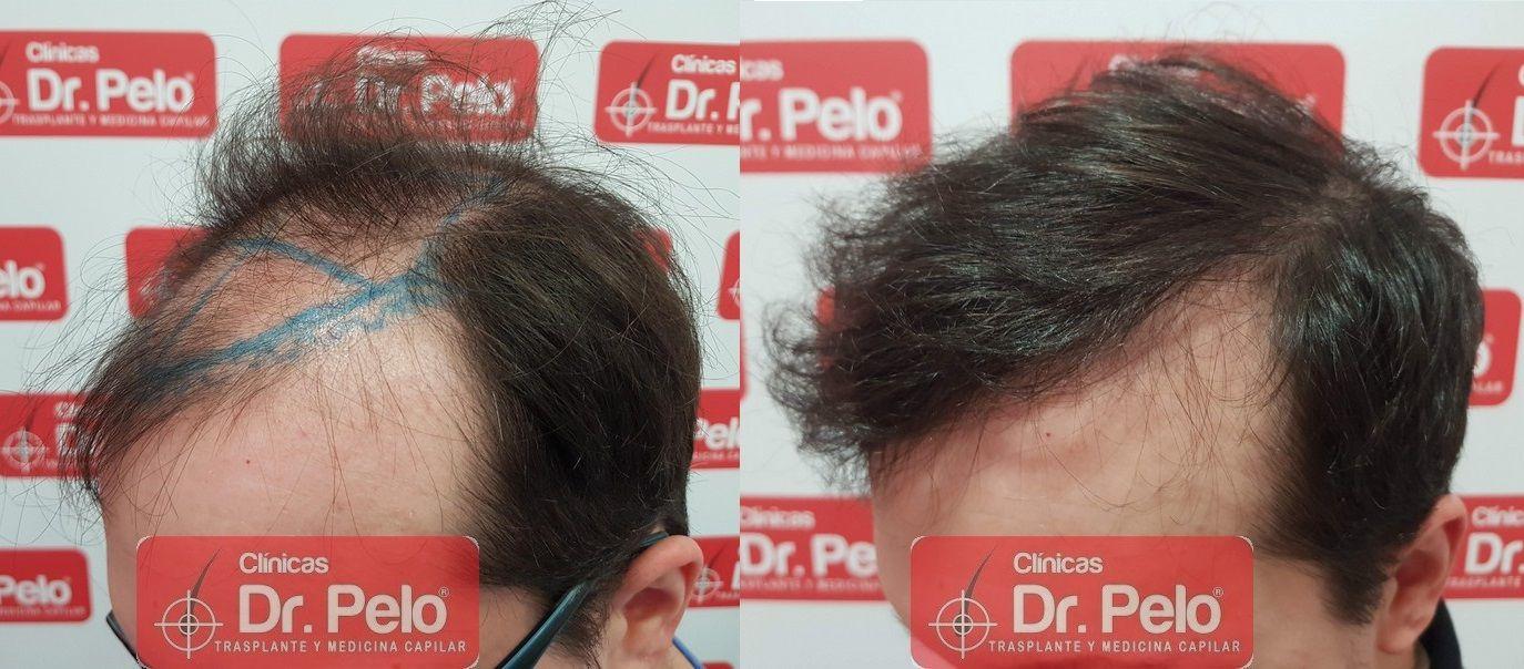 [Imagen: injerto-capilar-dr-pelo-sevilla-badajoz-...ida_21.jpg]