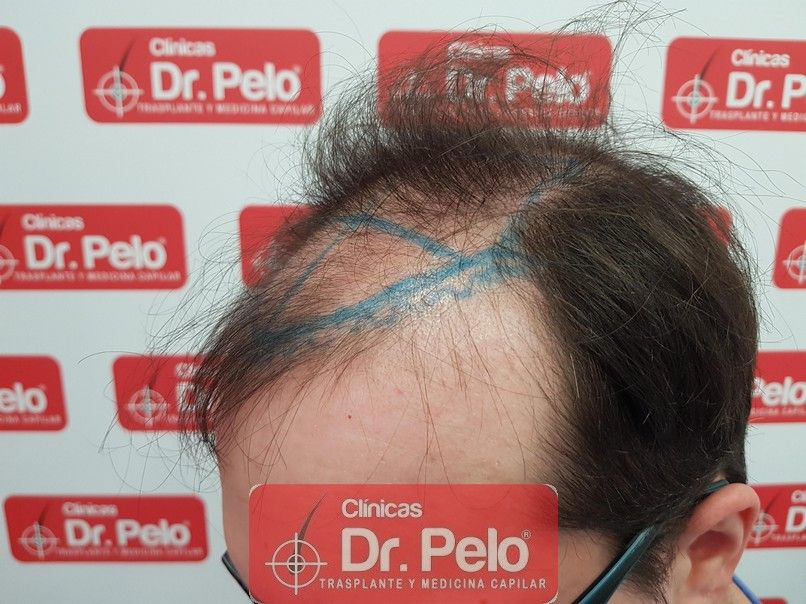[Imagen: injerto-capilar-dr-pelo-sevilla-badajoz-...rida_3.jpg]