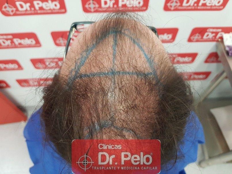 [Imagen: injerto-capilar-dr-pelo-sevilla-badajoz-...da_4-1.jpg]