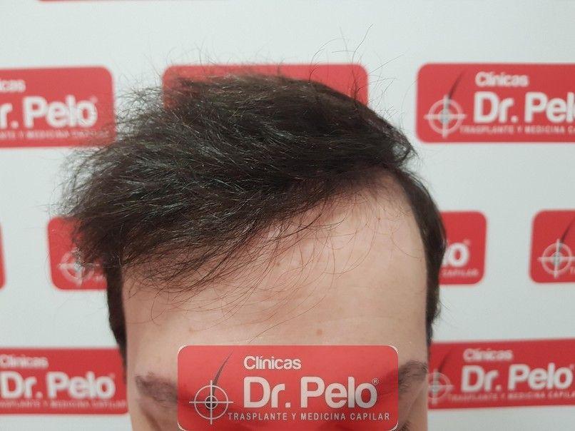 [Imagen: injerto-capilar-dr-pelo-sevilla-badajoz-...da_8-1.jpg]