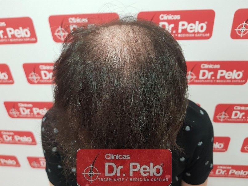 [Imagen: injerto-capilar-dr-pelo-sevilla-badajoz-...da_9-1.jpg]