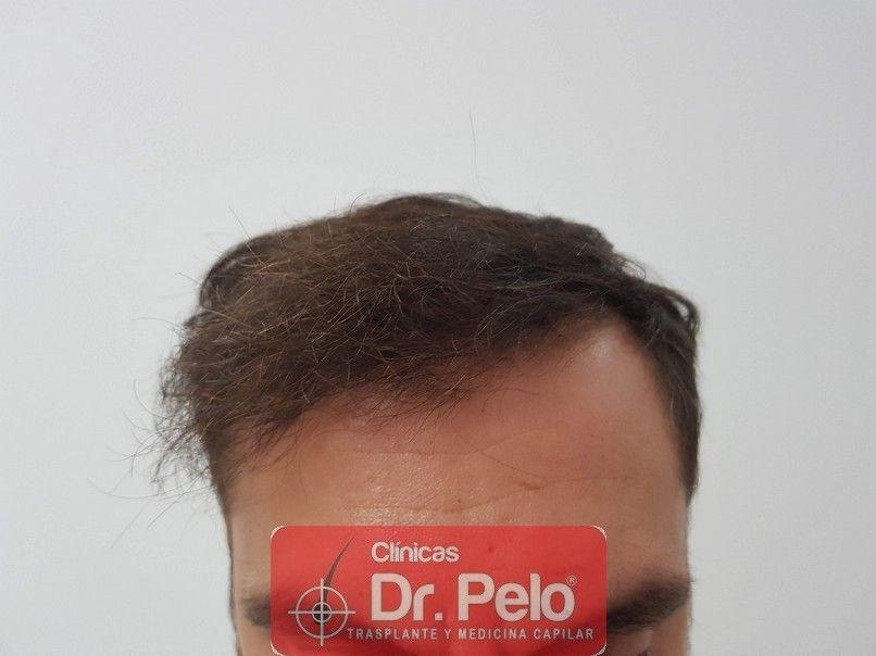 [Imagen: injerto-capilar-dr-pelo_10-1.jpg]