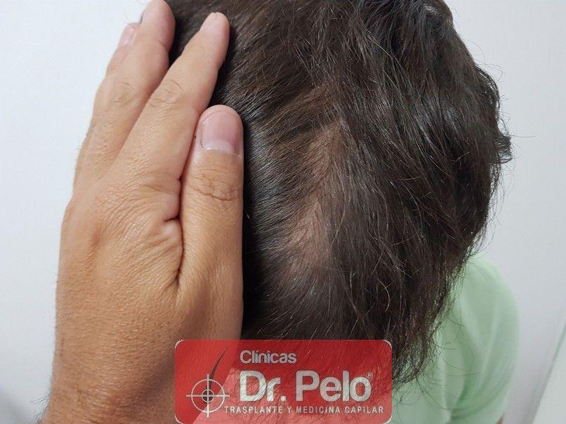 [Imagen: injerto-capilar-dr-pelo_13-1.jpg]