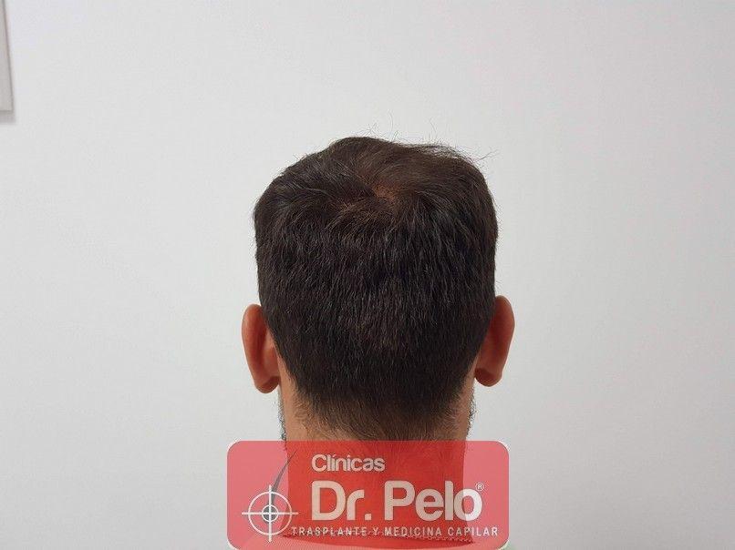 [Imagen: injerto-capilar-dr-pelo_16-1.jpg]