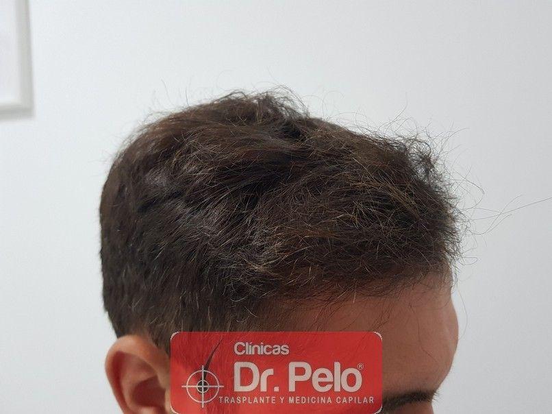 [Imagen: injerto-capilar-dr-pelo_19-1.jpg]