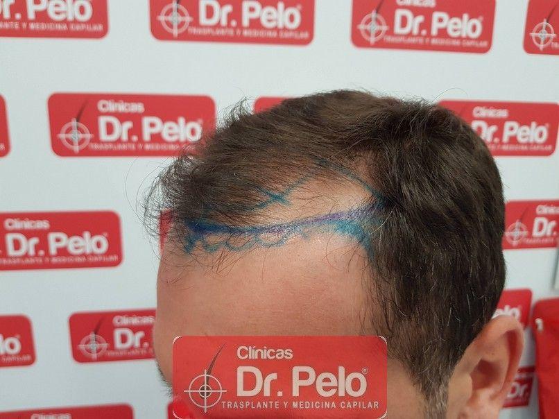 [Imagen: injerto-capilar-dr-pelo_3-1.jpg]