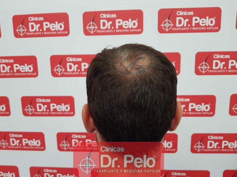 [Imagen: injerto-capilar-dr-pelo_4-1.jpg]