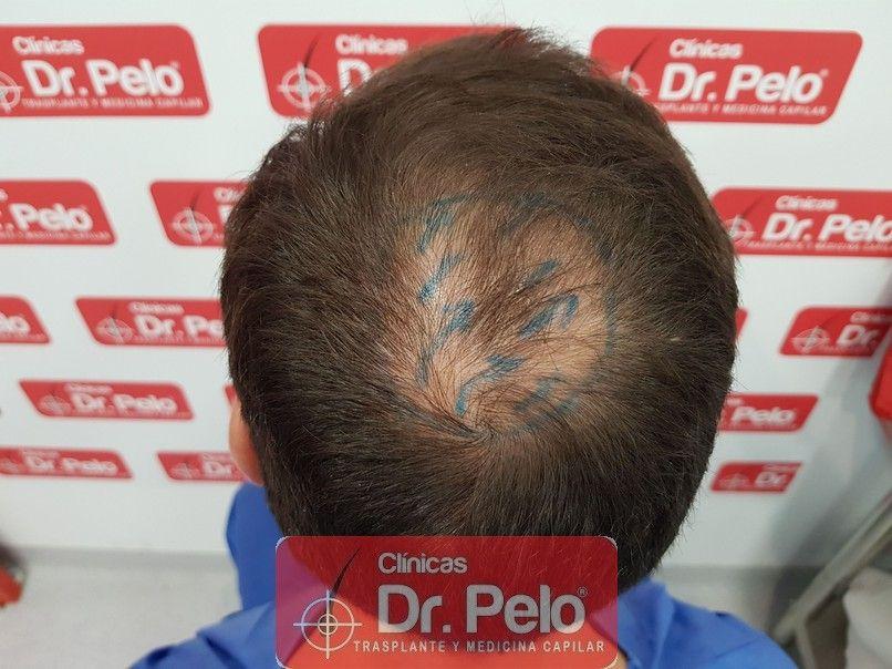 [Imagen: injerto-capilar-dr-pelo_5-1.jpg]