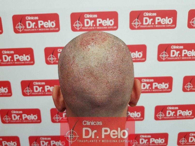 [Imagen: injerto-capilar-dr-pelo_9-1.jpg]