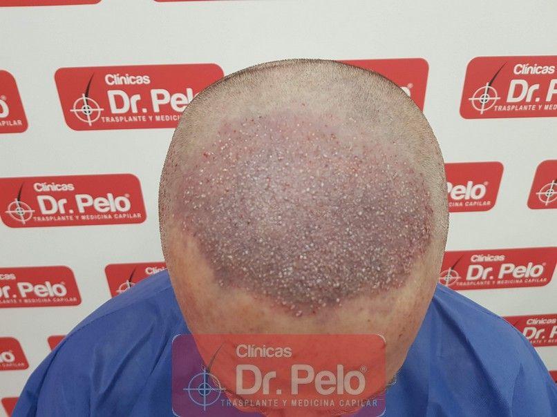 [Imagen: trasplante-capilar-dr-pelo-sevilla-badaj...rida_6.jpg]