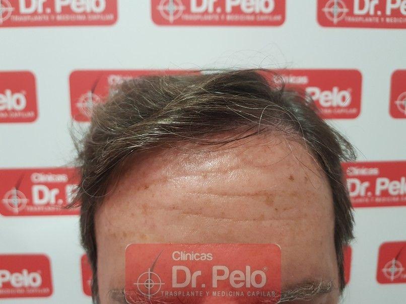 [Imagen: trasplante-capilar-dr-pelo-sevilla-badaj...rida_8.jpg]