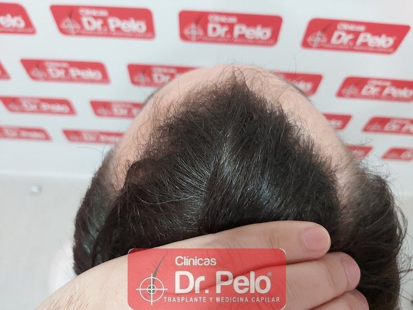[Imagen: injerto-capilar-dr-pelo-sevilla-badajoz-...a_10-1.jpg]