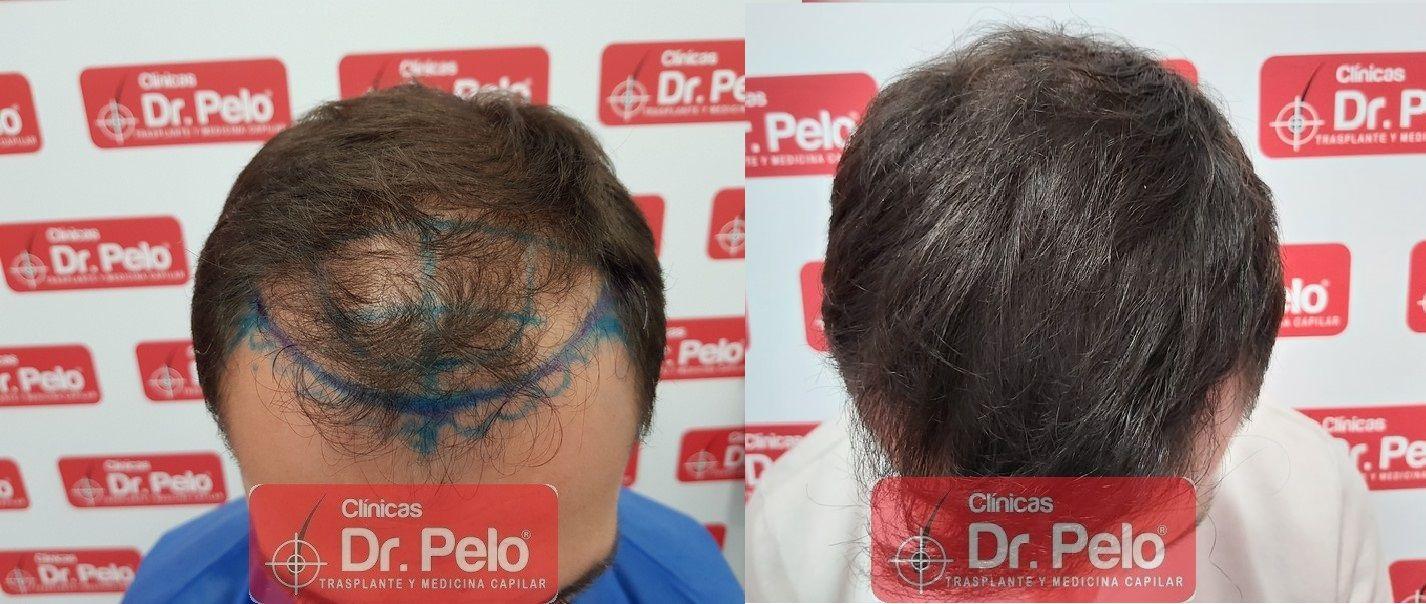 [Imagen: injerto-capilar-dr-pelo-sevilla-badajoz-...a_21-1.jpg]