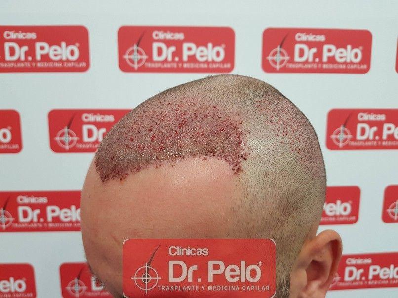 [Imagen: injerto-capilar-dr-pelo-sevilla-badajoz-...da_5-1.jpg]