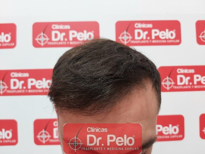 [Imagen: injerto-capilar-dr-pelo-sevilla-badajoz-...da_6-1.jpg]