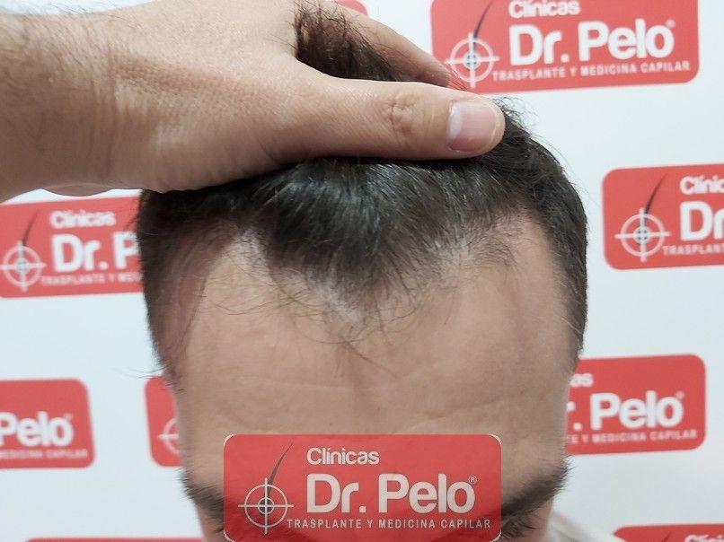 [Imagen: injerto-capilar-dr-pelo-sevilla-badajoz-...da_7-1.jpg]