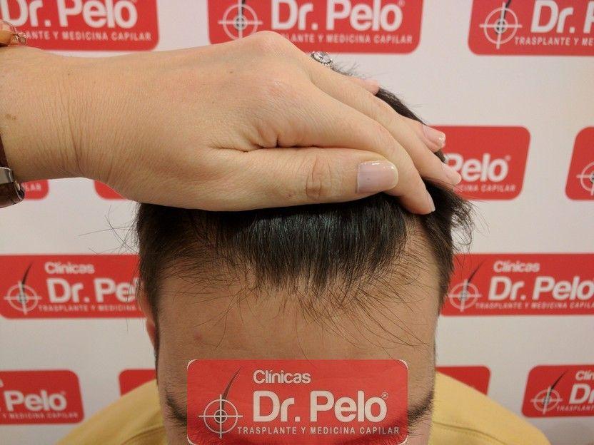 [Imagen: tratamiento-capilar-dr-pelo-sevilla-bada...rida_8.jpg]
