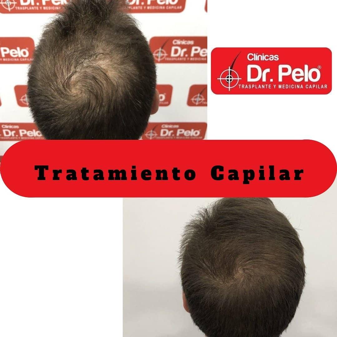 tratamiento capilar dr pelo