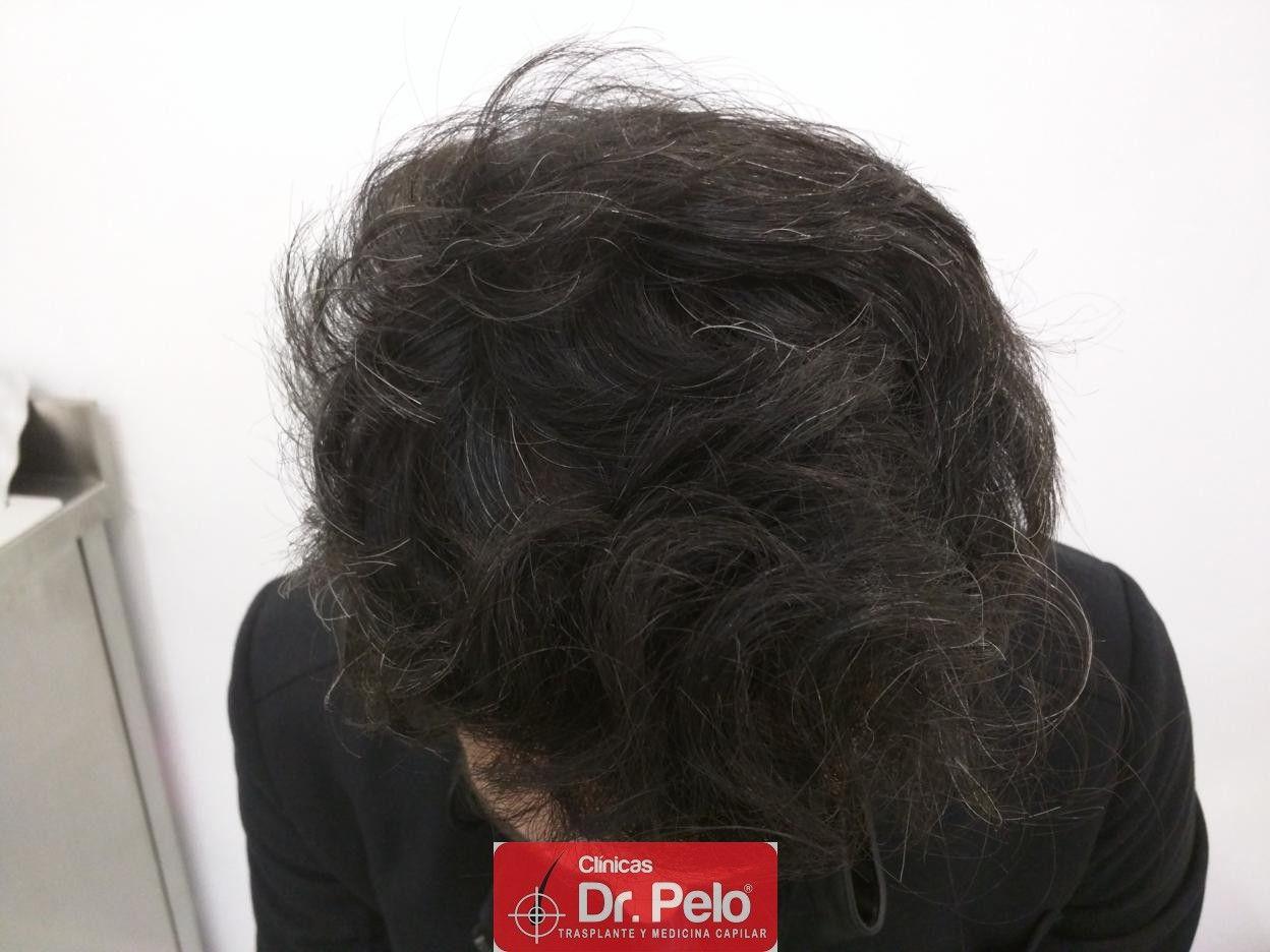 [Imagen: IMG_20170511_192242-injerto-capilar-fue-dr-pelo.jpg]