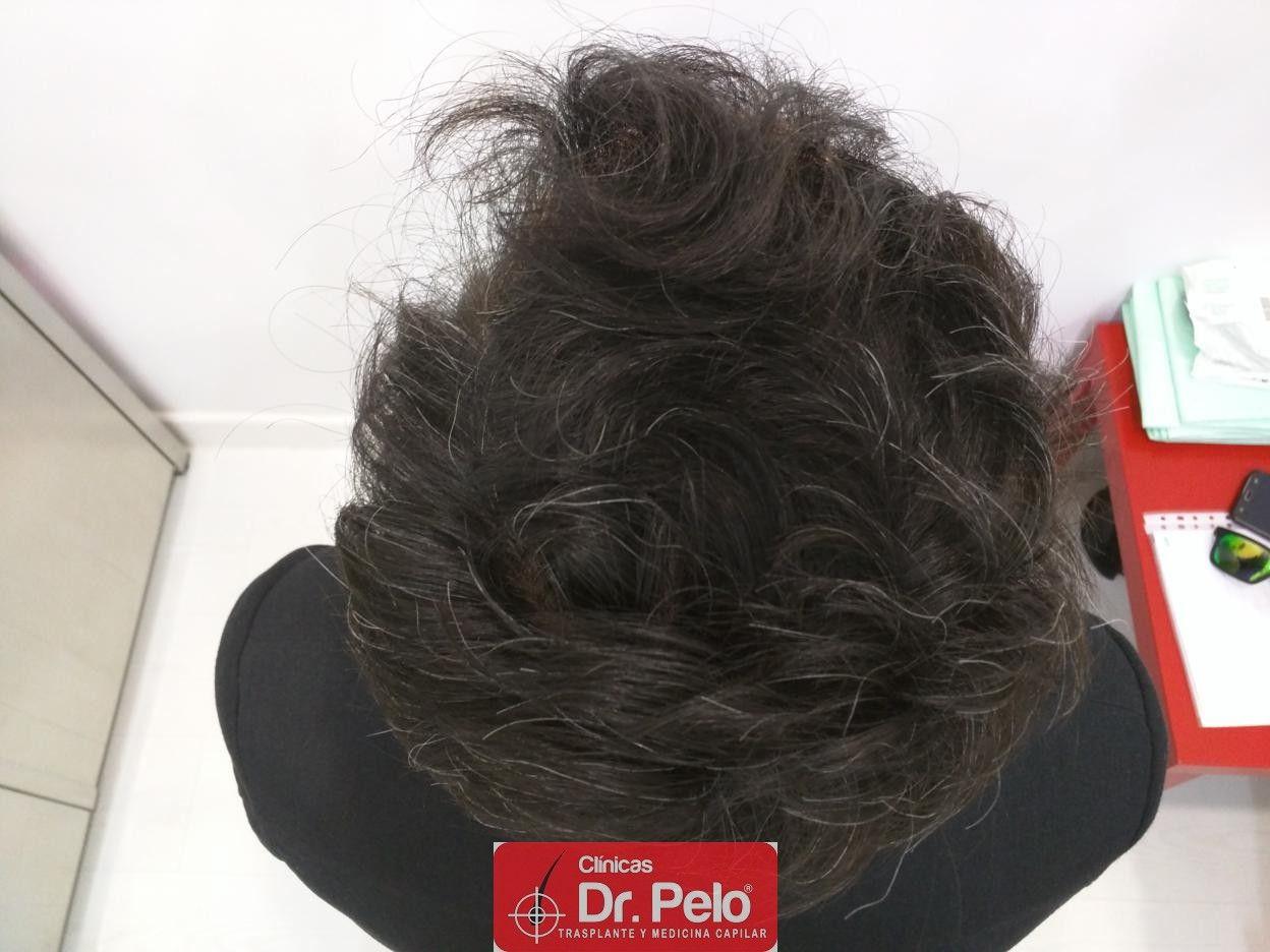 [Imagen: IMG_20170511_192405-injerto-capilar-fue-dr-pelo.jpg]