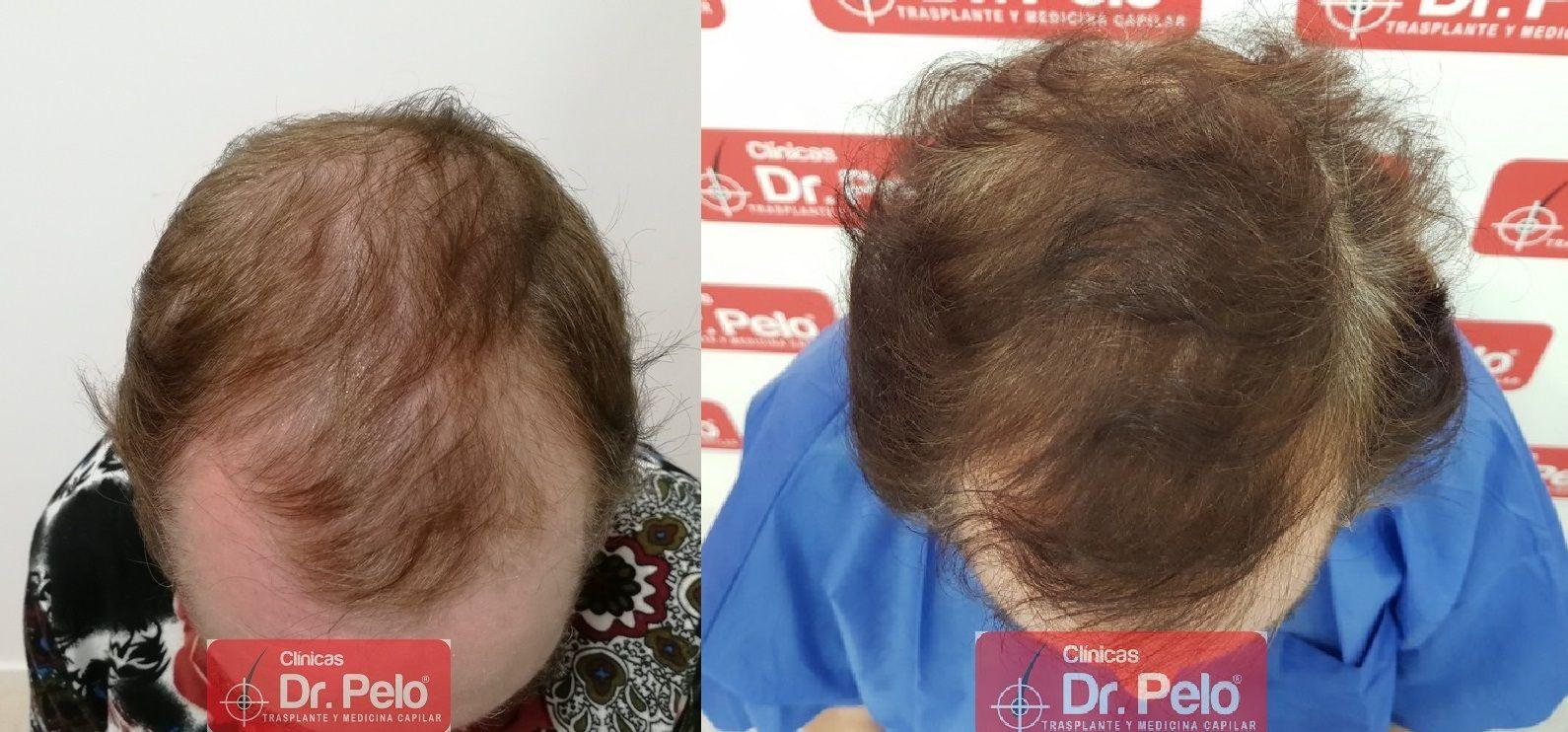 [Imagen: tratamiento-capilar-dr-pelo_15.jpg]