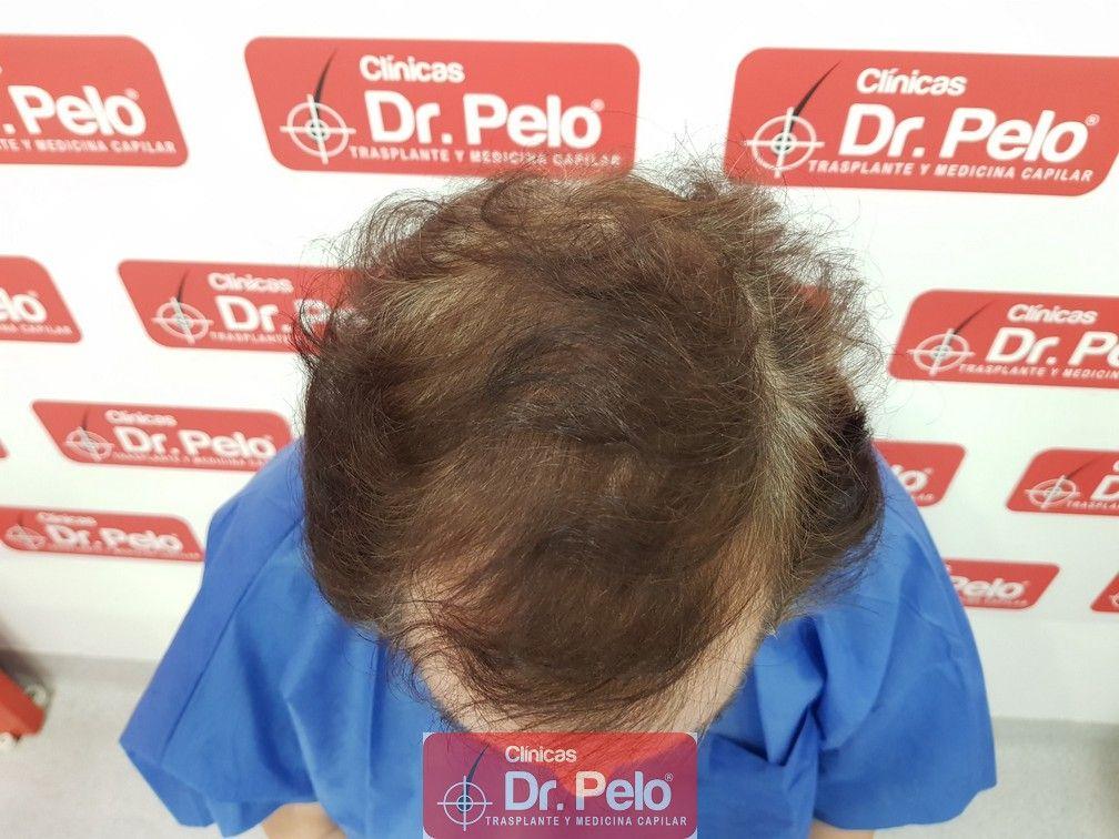 [Imagen: tratamiento-capilar-dr-pelo_3.jpg]