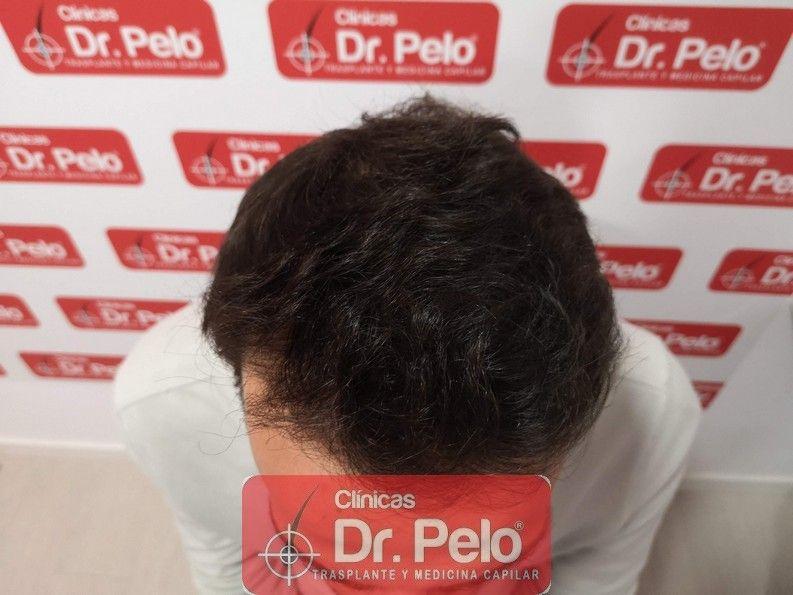[Imagen: reconstruccion-cirugia-capilar-dr-pelo-s...ida_10.jpg]