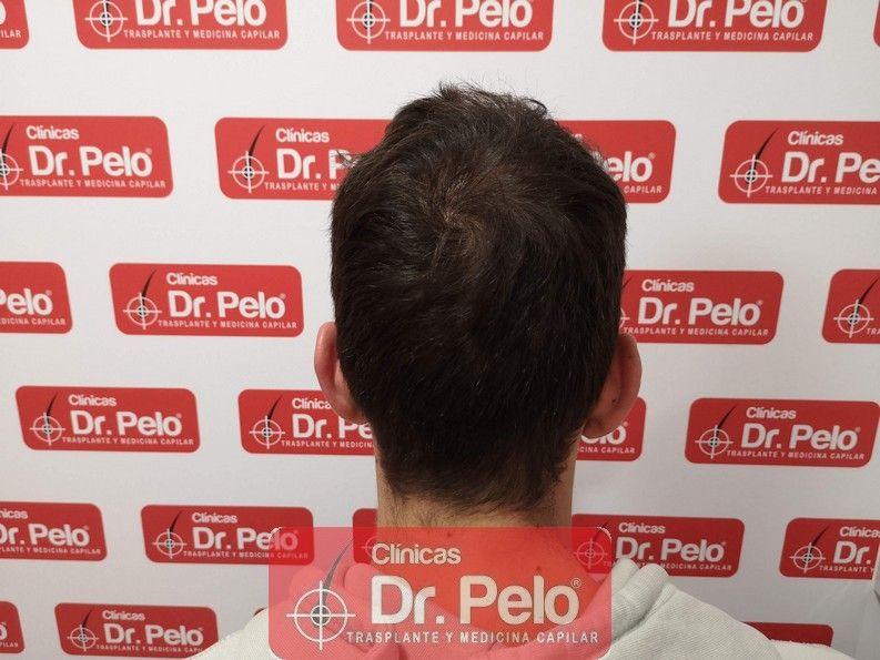 [Imagen: reconstruccion-cirugia-capilar-dr-pelo-s...ida_15.jpg]
