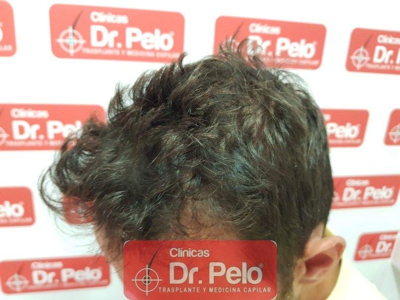 [Imagen: reconstruccion-cirugia-capilar-dr-pelo-s...rida_4.jpg]