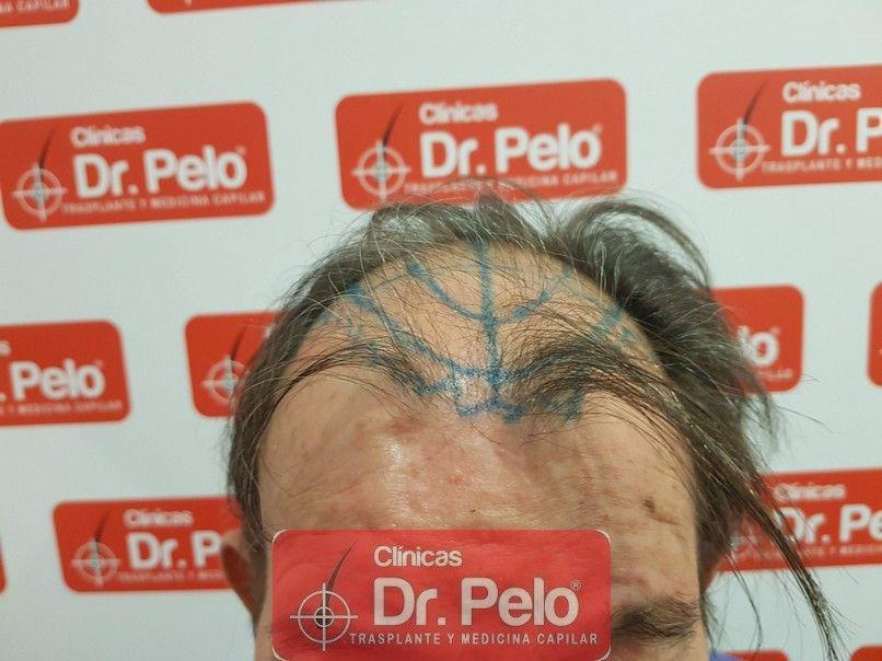 [Imagen: cirugia-capilar-dr-pelo-sevilla-badajoz-...merida.jpg]