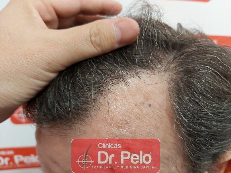 [Imagen: cirugia-capilar-dr-pelo-sevilla-badajoz-...ida_10.jpg]