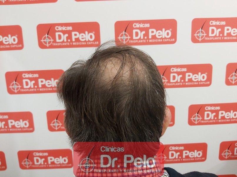 [Imagen: cirugia-capilar-dr-pelo-sevilla-badajoz-...ida_11.jpg]