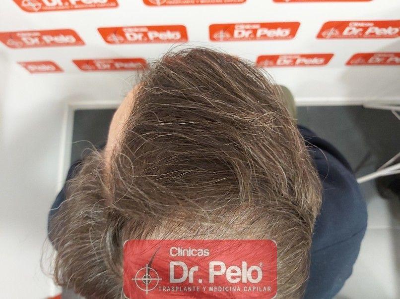 [Imagen: cirugia-capilar-dr-pelo-sevilla-badajoz-...ida_12.jpg]