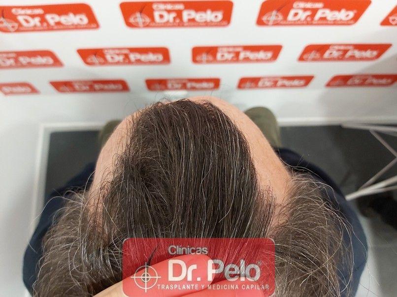 [Imagen: cirugia-capilar-dr-pelo-sevilla-badajoz-...ida_13.jpg]