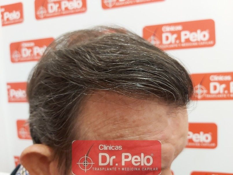 [Imagen: cirugia-capilar-dr-pelo-sevilla-badajoz-...ida_14.jpg]