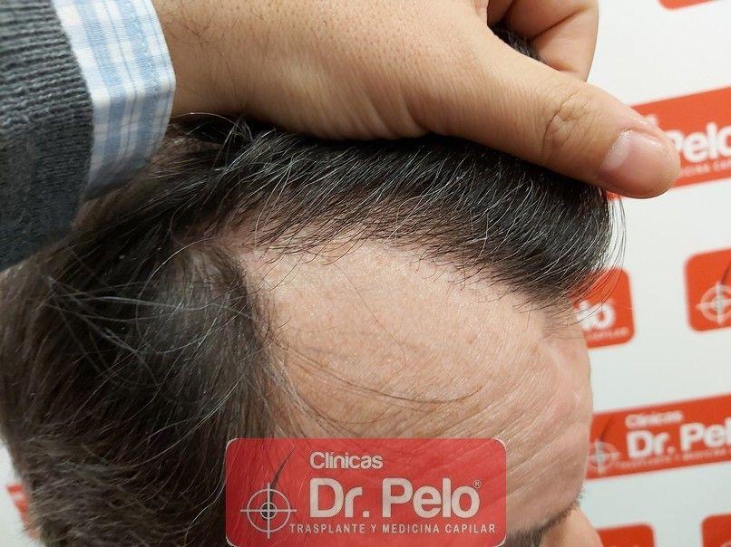 [Imagen: cirugia-capilar-dr-pelo-sevilla-badajoz-...ida_15.jpg]