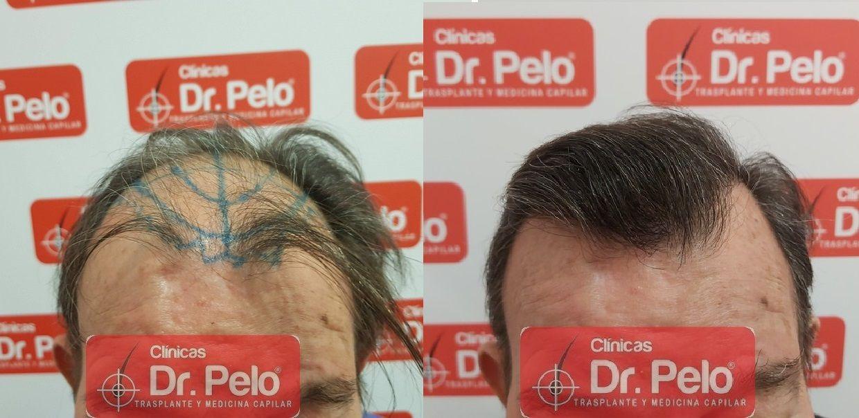 [Imagen: cirugia-capilar-dr-pelo-sevilla-badajoz-...ida_16.jpg]