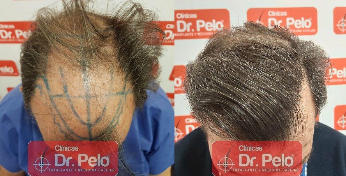 [Imagen: cirugia-capilar-dr-pelo-sevilla-badajoz-...ida_17.jpg]