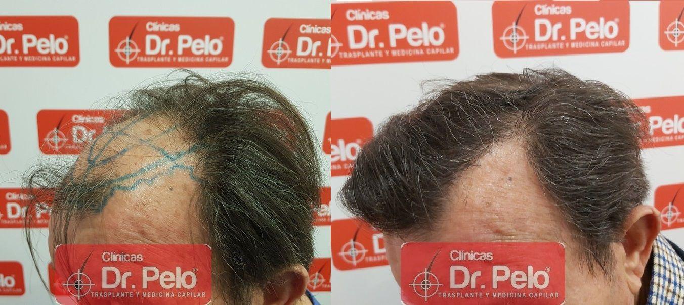 [Imagen: cirugia-capilar-dr-pelo-sevilla-badajoz-...ida_18.jpg]