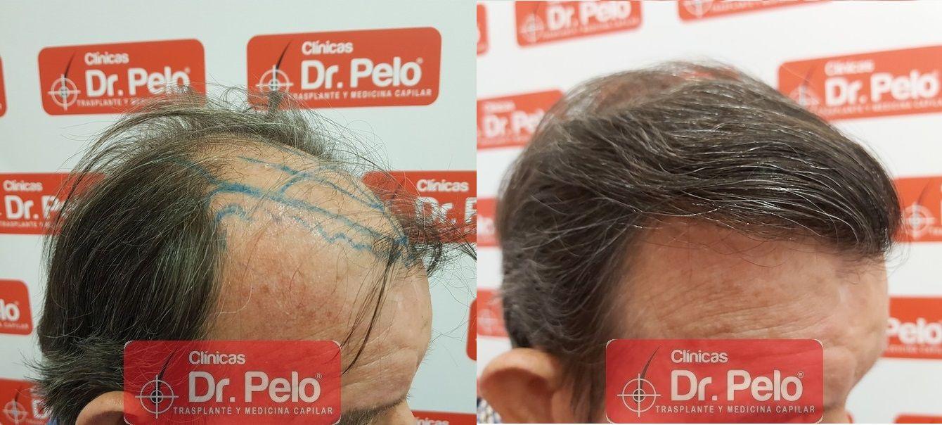 [Imagen: cirugia-capilar-dr-pelo-sevilla-badajoz-...ida_19.jpg]
