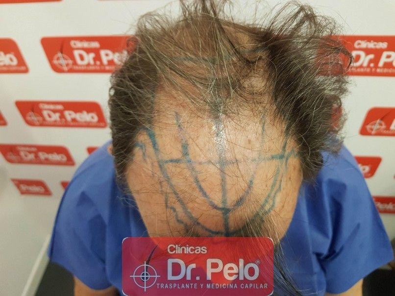 [Imagen: cirugia-capilar-dr-pelo-sevilla-badajoz-...rida_2.jpg]
