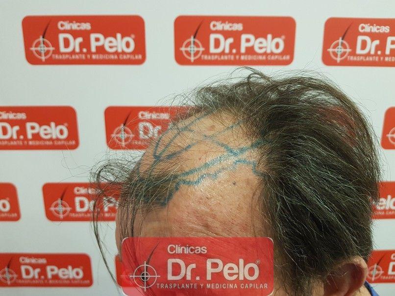 [Imagen: cirugia-capilar-dr-pelo-sevilla-badajoz-...rida_3.jpg]