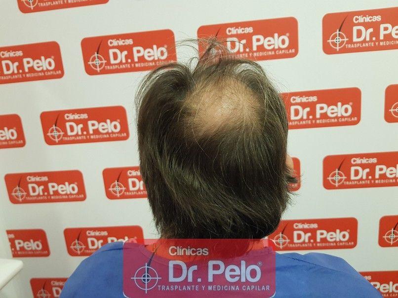 [Imagen: cirugia-capilar-dr-pelo-sevilla-badajoz-...rida_4.jpg]