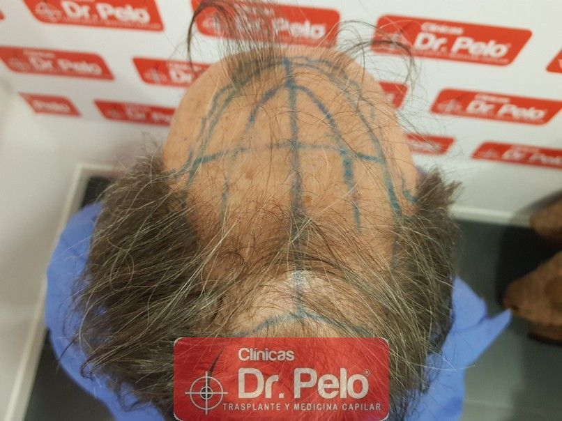 [Imagen: cirugia-capilar-dr-pelo-sevilla-badajoz-...rida_5.jpg]